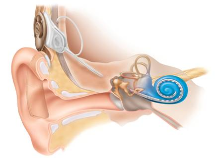 Firmly adult cochlear habilitation implant in look