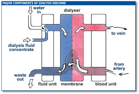 In The Case Of Peritoneal Dialysis Glucose Dialysate Provides Extra Force Haemodialysis Machine Is Programmed To Provide