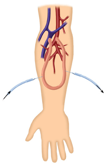 Dialysis Graft